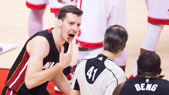 Goran Dragic Bloody Mouth Game 2