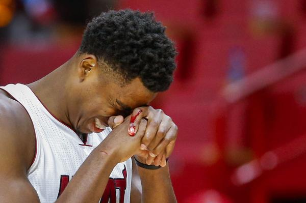 Hassan Whiteside Hand Laceration